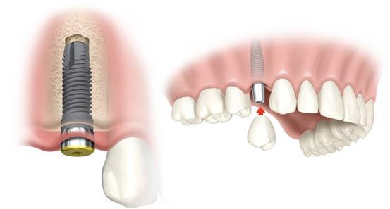 implantaat tandarts den haag