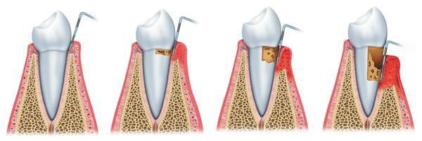 parodontitis tandarts den haag